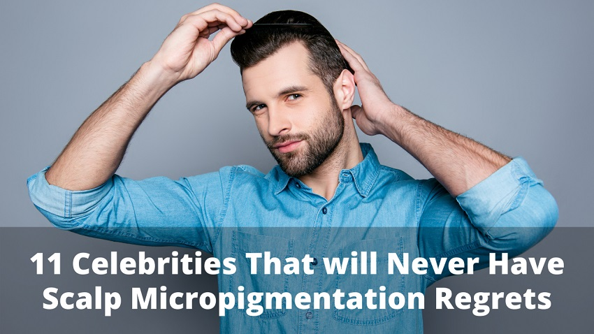 11 Celebrities That will Never Have Scalp Micropigmentation Regrets